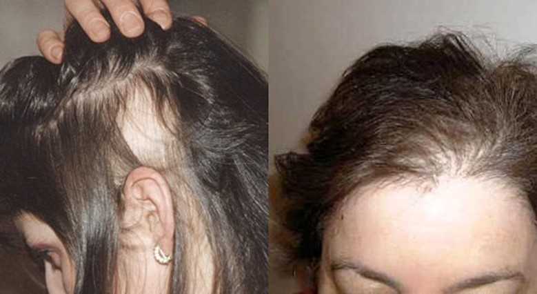 От утюжка выпадают волосы