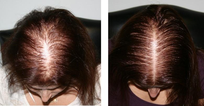 Как восстановить волосы от выпадения