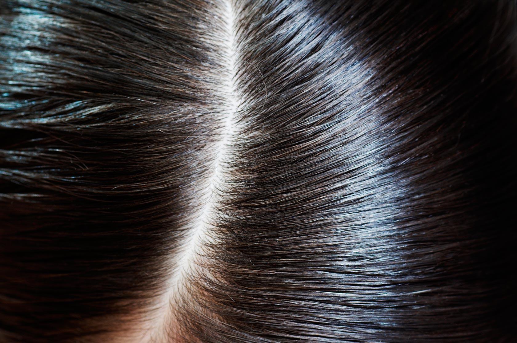 Волосы без перхоти