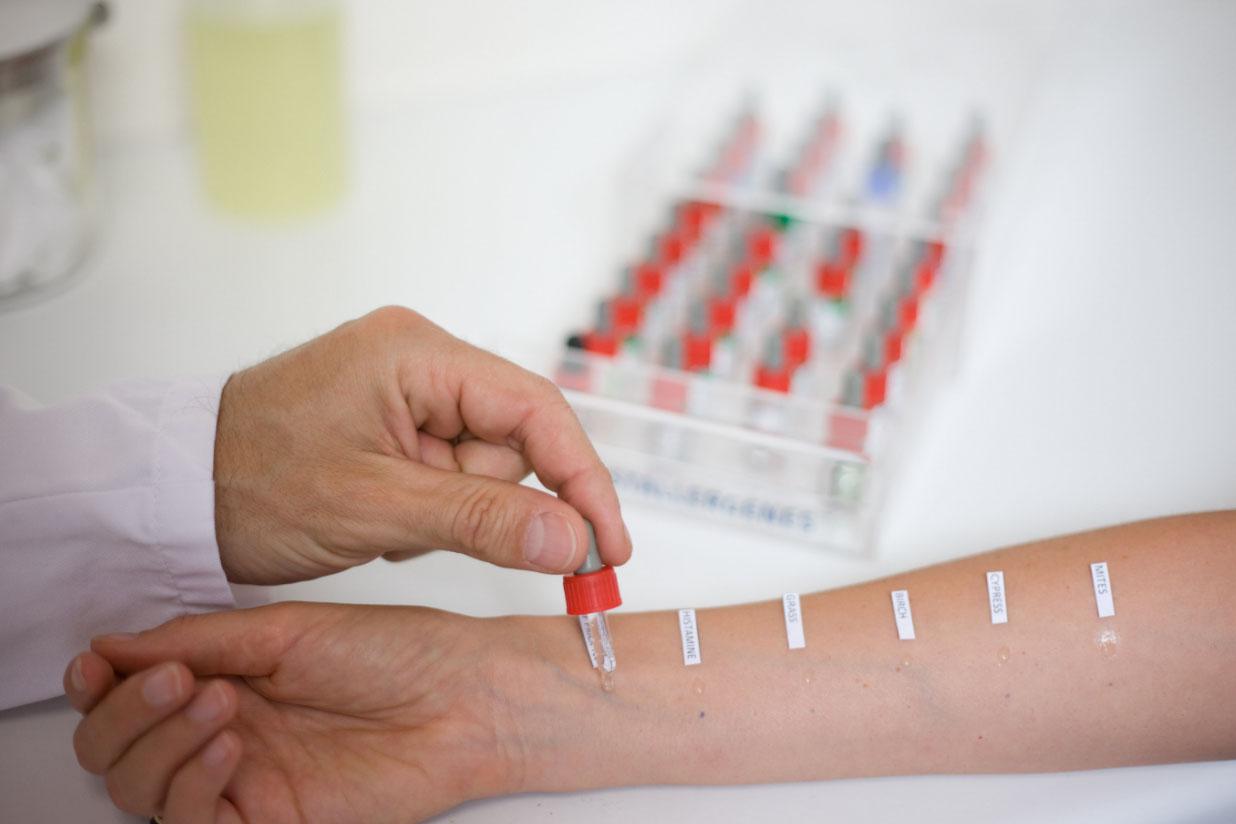Как сделать анализ на аллергию у ребенка