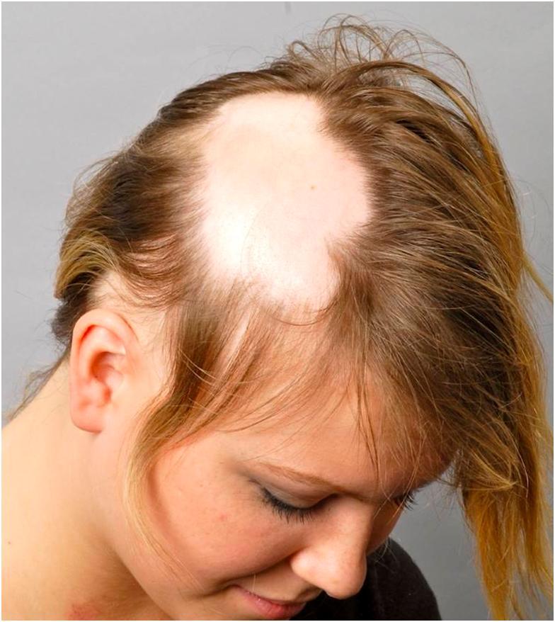 Почему выпадают на голове волосы