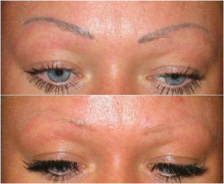 Вывести перманентный макияж в домашних условиях