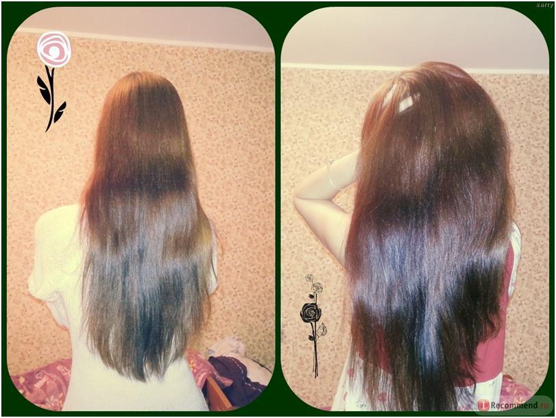Корень лопуха при выпадении волос