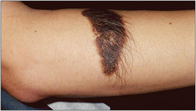 Лечение плоских бородавки на лице