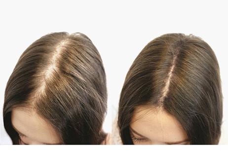 Причина выпадения волос на ногах у мужчин