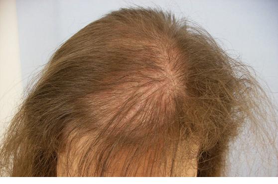Почему выпадают волосы на макушке