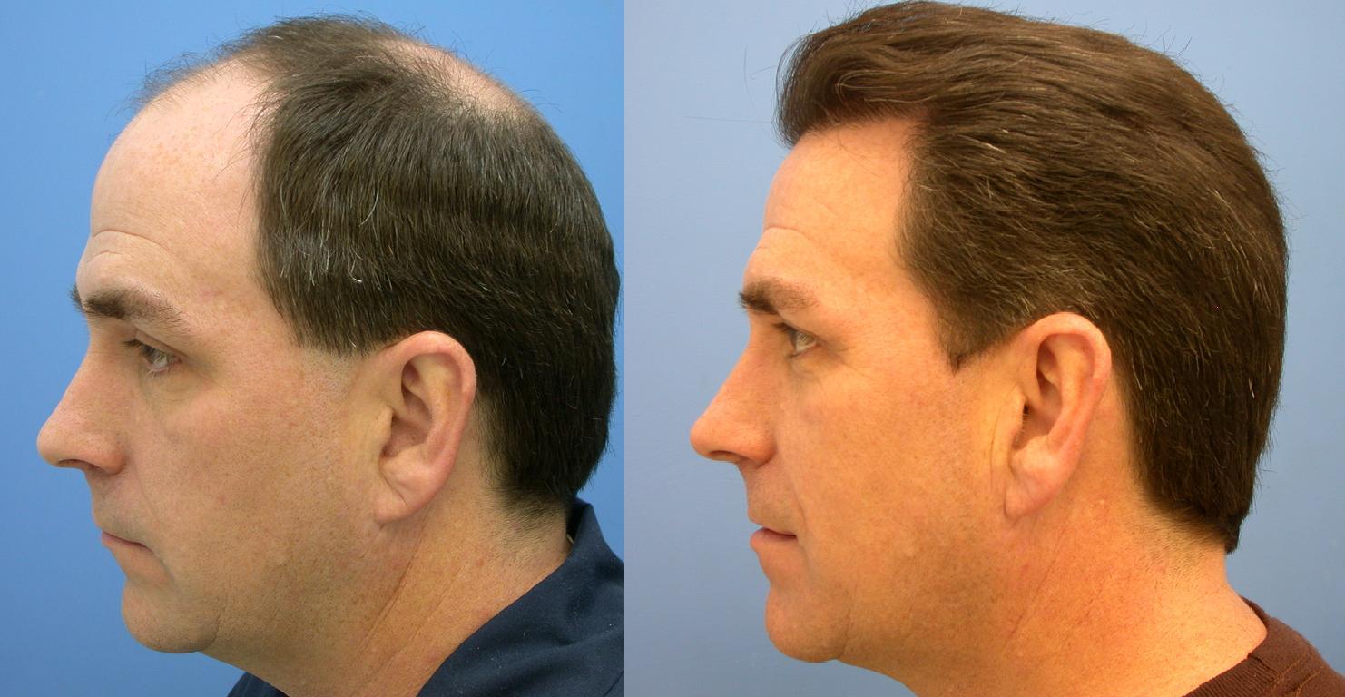 Пересадка волос до и после у мужчины