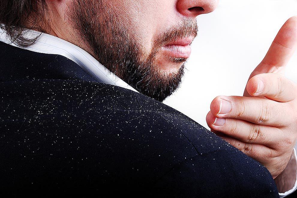 Мужчина стряхивает рукой перхоть с плеча
