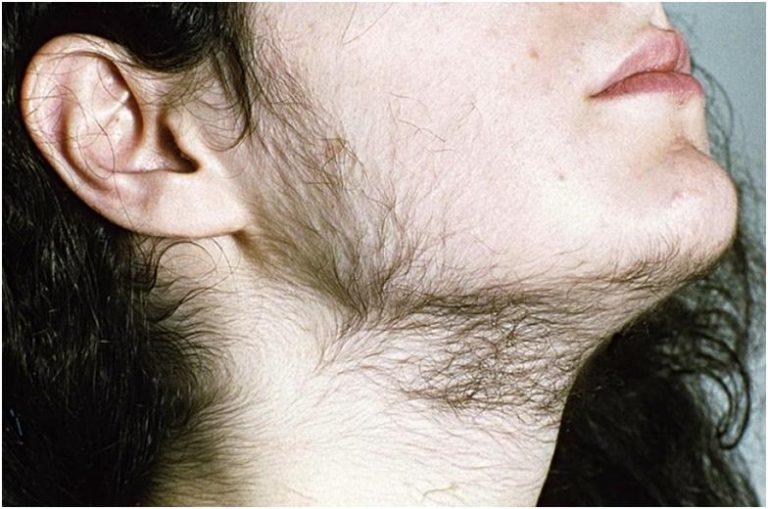 половой орган анорексичек фото