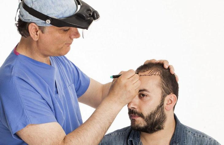 Пересадка волос без операции