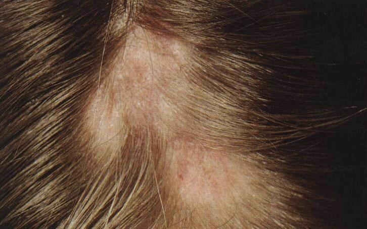 Волосы выпадают очагами причины