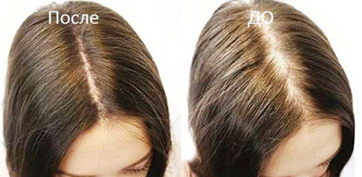 Кроме того, он способствует исчезновению перхоти, делает волосы гуще и способствует их росту