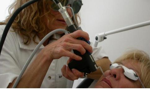 Удаление волос на лице лазером